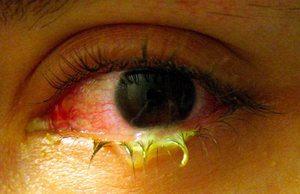 Симптомы бактериального конъюнктивита у детей
