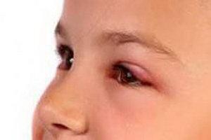 Халязион у детей
