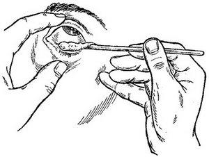 Как правильно заложить мазь за глаз