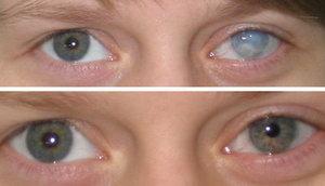 Помутнение роговицы глаза от аденовирусного конъюнктивита