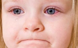 Ребенок с конъюнктивитом