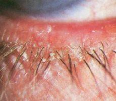 Себорейный блефораконъюнктивит