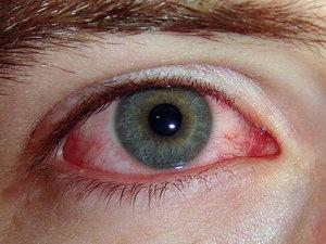 Покраснение глаз на начальной стадиии вирусного конъюнктивита