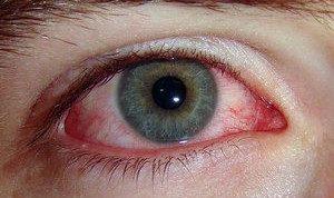 Покраснение конъюнктивы на начальной стадии заболевания
