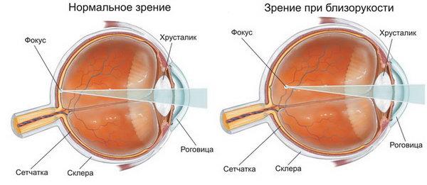 Анатомическая структура глаза и близорукость