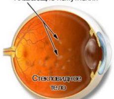 Механизм возникновения деструкции стекловидного тела глаза