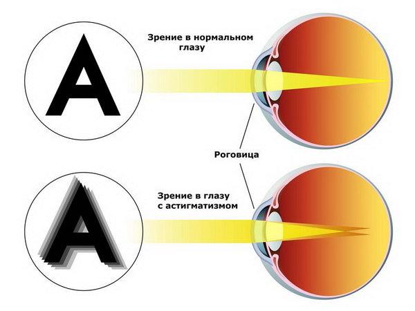 Как видят предметы при астигматизме
