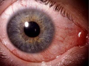 Покраснение глаз в следствии конъюнктивита