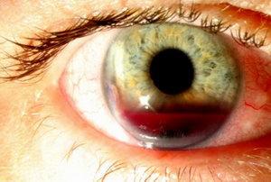 симптомы гемофтальма