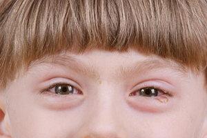 Слезоточивость у детей старшего возраста