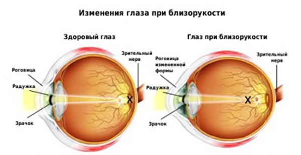 Овальный глаз при миопии