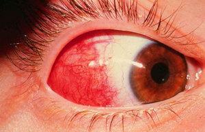 Глаз пораженный эписклеритом