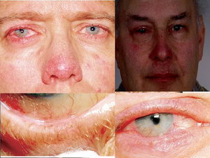 Симптомы эписклерита