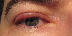 блефарит правого глаза