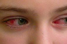 Красные глаза в следствии бытовых причин