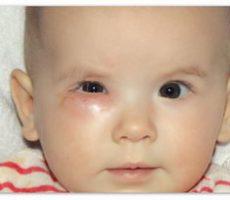 Ребенок с непроходимостью слезного канала