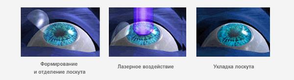 Первая технология лазерной коррекции