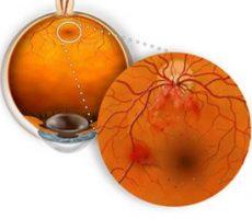 Механизм возникновения ангиопатии сетчатки глаза