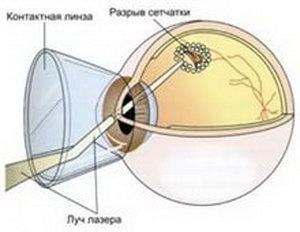 Лечение лазерной процедурой