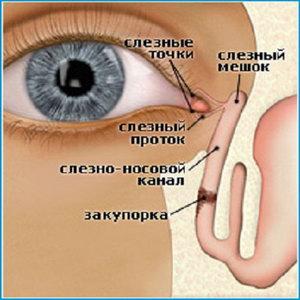 Непроходимость при сужении слезного канала