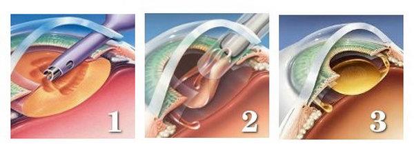 Хирургическое мешательство для лечения миопии