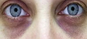 Круги под глазами в следствии болезней сердца