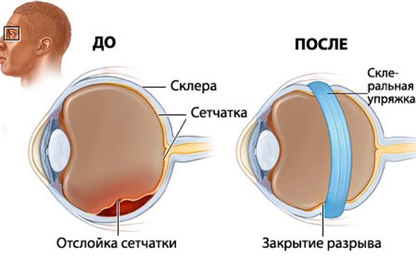 Установленная склеральная упряжка