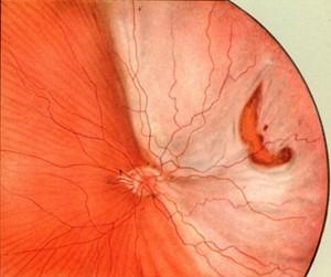 Разрыв сетчатки глаза