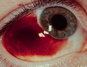 Кровоизлияние под конъюнктиву