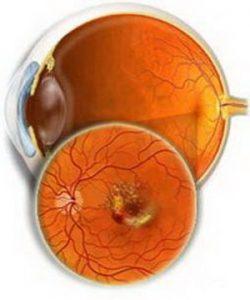 Макулодистрофия сетчатки глаза: лечение, причины, симптомы, что это такое, виды сухая, влажная, возрастная, диагностика, профилактика макулярной дистрофии