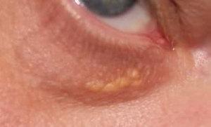 Расположение жировиков у глаза