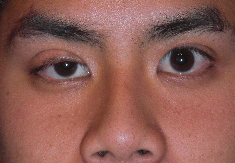 мешки под глазами после ботокса что делать отзывы