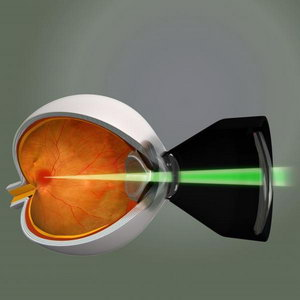 Схема воздействи лазера на глаз