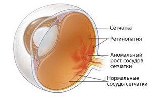 Строение глаза у недоношенного ребенка