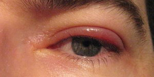 Блефарит на глазу