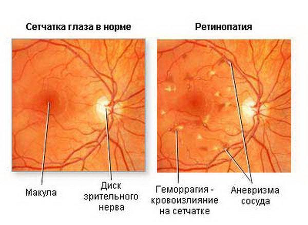 Изображение аневризм в больном глазу