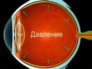 Механизм действия глазного давления