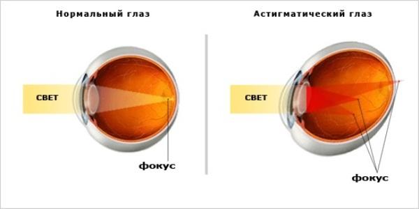 Схема глаза с астигматизмом и нет