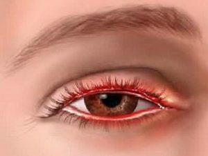 Блефарит, воспаление краев век