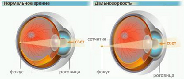 Механизм фокусировки зрения на сетчатку