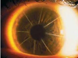 Глаз с делениями
