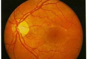 Здоровое глазное дно