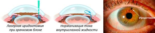 Иридотомия