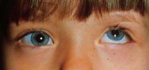 Левый глаз смотрит вверх