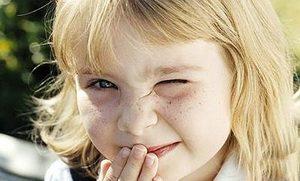 Ребенок с закрытым глазом