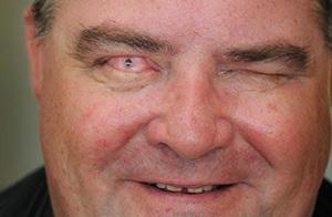 Ожог глаза 3 степени