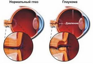Схема глаукомы