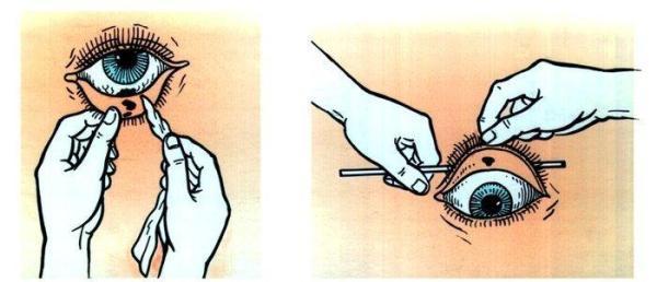 Схема удаления инородного тела из глаз