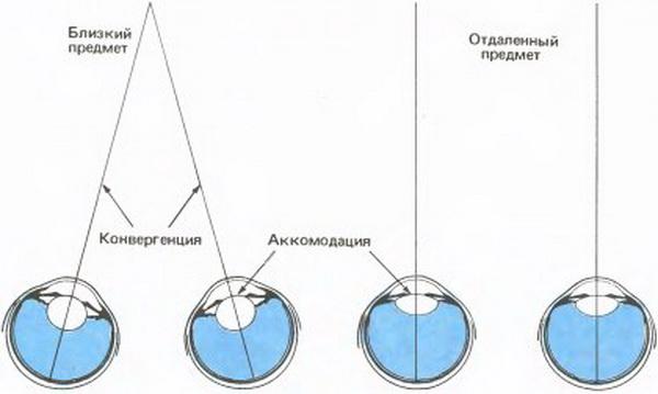 Схема спазма аккомодации