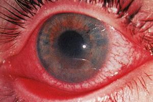 Глаз с красными сосудами